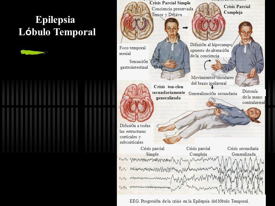 EEG. Progresión de la crisis en la Epilepsia del lóbulo Temporal.
