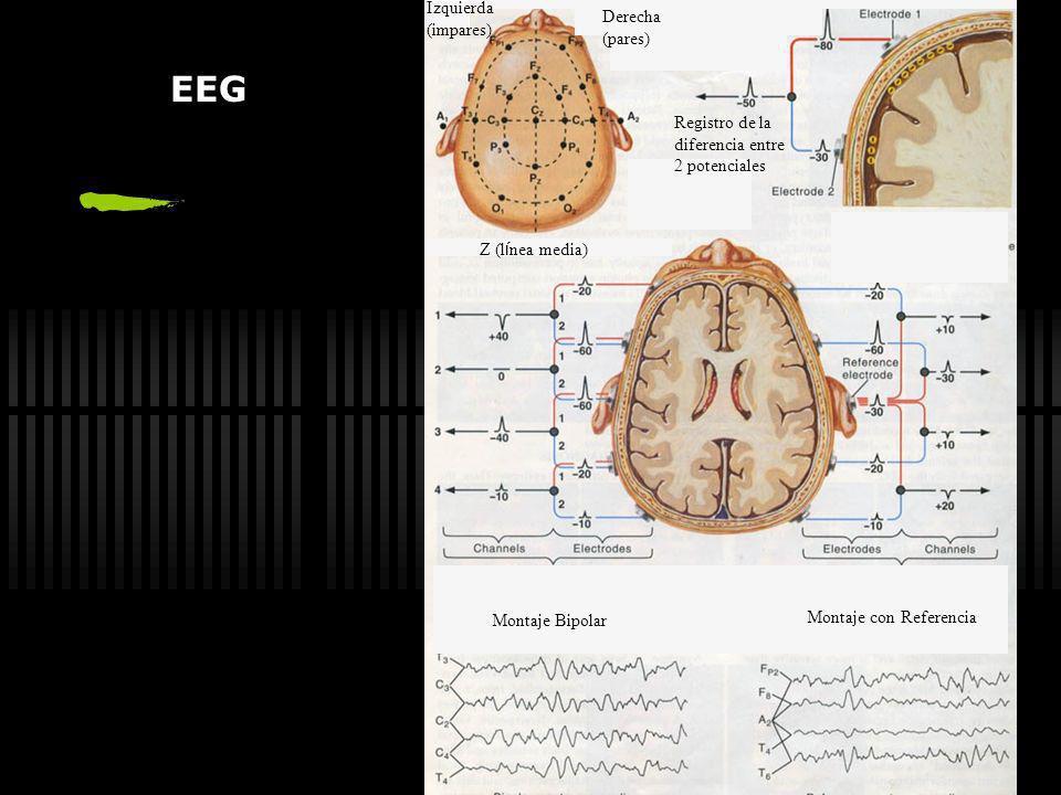 EEG Izquierda (impares) Derecha (pares) Registro de la