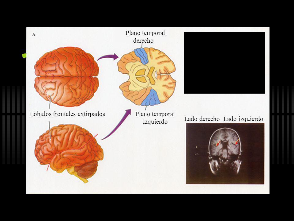 Lóbulos frontales extirpados