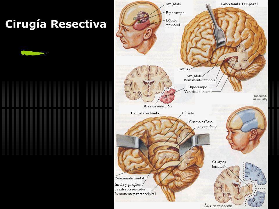 Cirugía Resectiva Amígdala Lobectomía Temporal Hipocampo Lóbulo