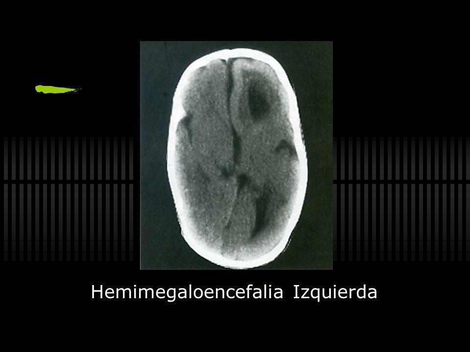 Hemimegaloencefalia Izquierda