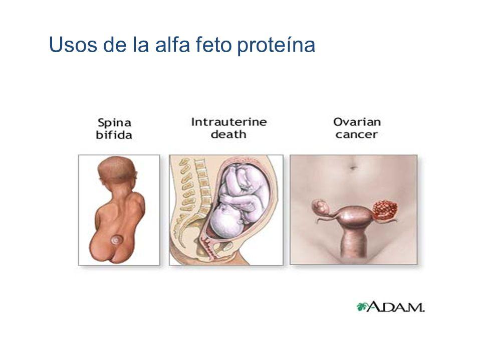 Usos de la alfa feto proteína