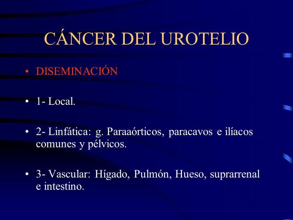 CÁNCER DEL UROTELIO DISEMINACIÓN 1- Local.