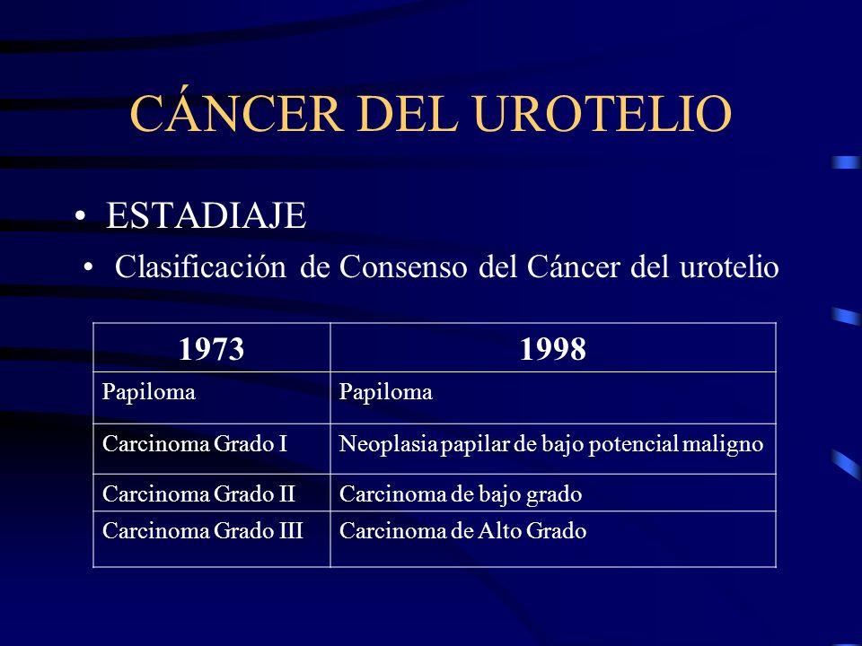 Clasificación de Consenso del Cáncer del urotelio