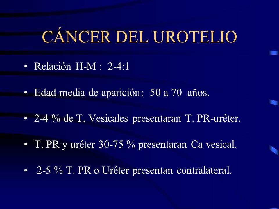CÁNCER DEL UROTELIO Relación H-M : 2-4:1