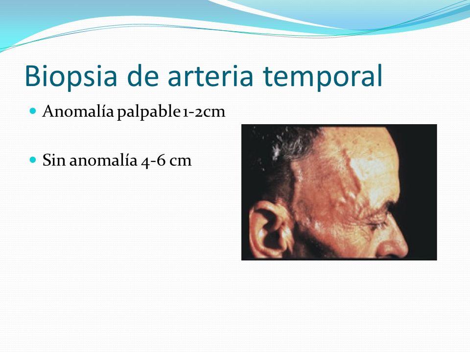 Biopsia de arteria temporal