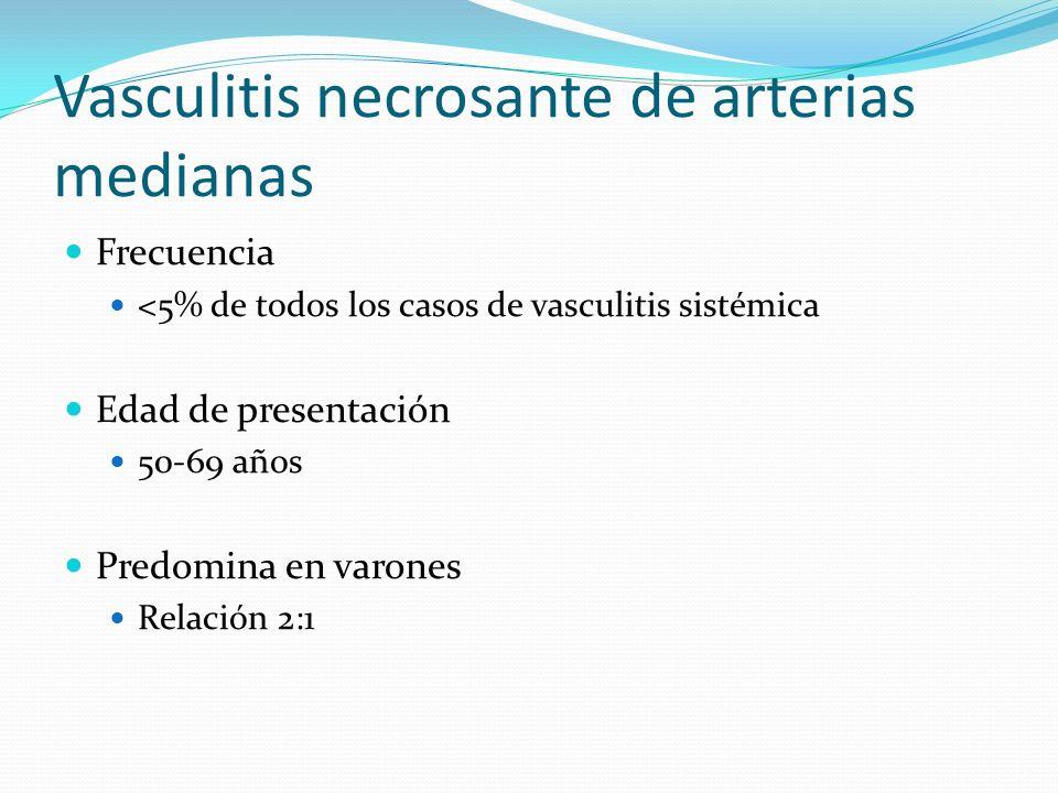 Vasculitis necrosante de arterias medianas