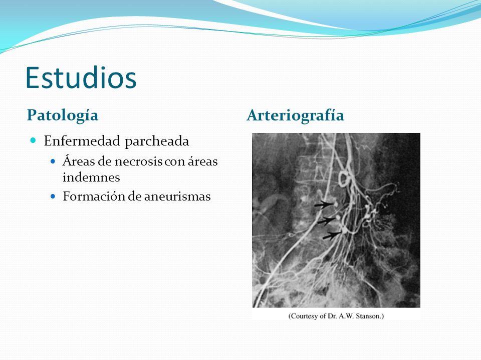 Estudios Patología Arteriografía Enfermedad parcheada