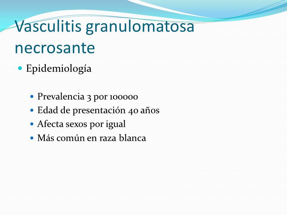 Vasculitis granulomatosa necrosante