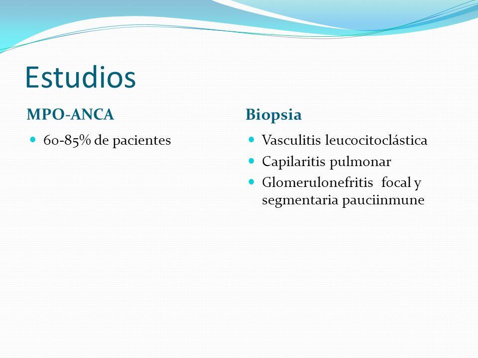 Estudios MPO-ANCA Biopsia 60-85% de pacientes
