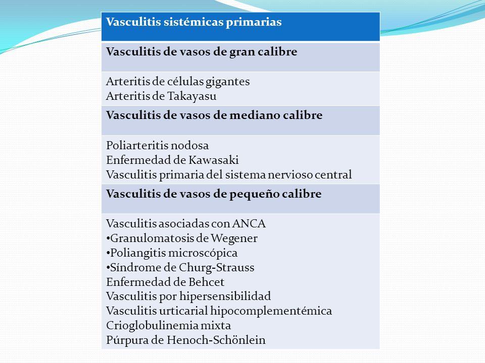 Vasculitis sistémicas primarias