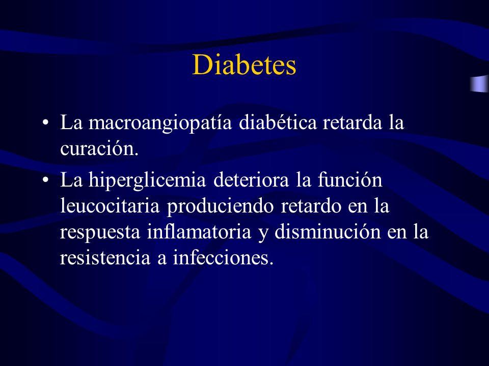 Diabetes La macroangiopatía diabética retarda la curación.