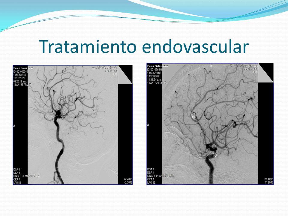 Tratamiento endovascular