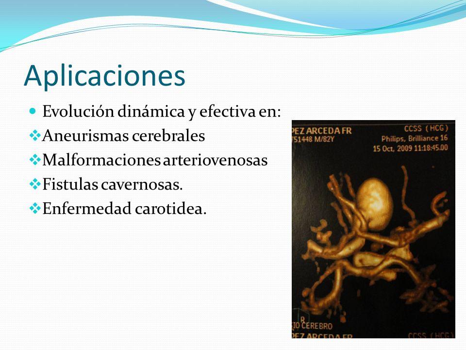 Aplicaciones Evolución dinámica y efectiva en: Aneurismas cerebrales