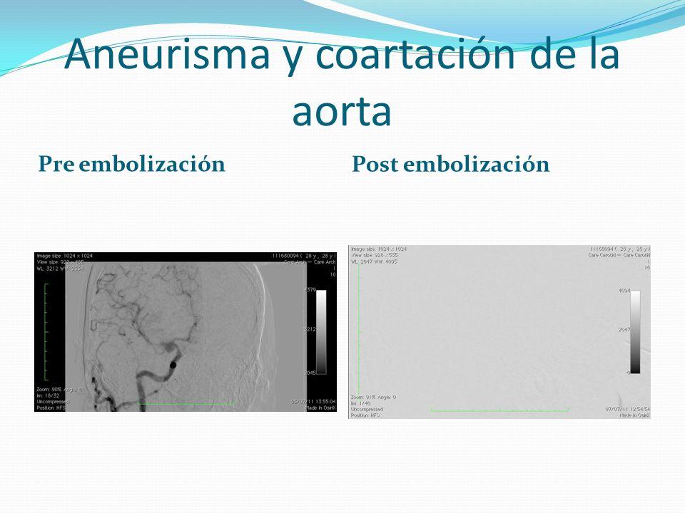 Aneurisma y coartación de la aorta