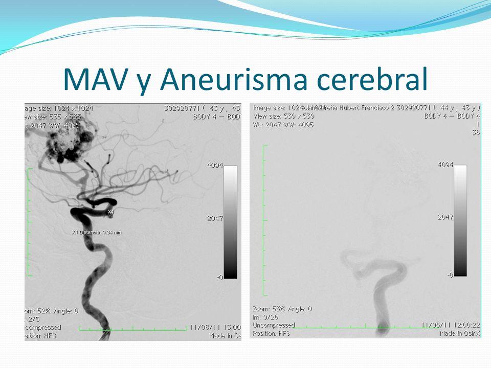 MAV y Aneurisma cerebral