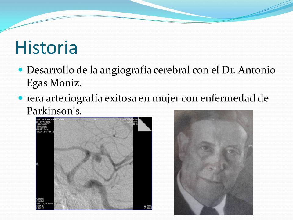 Historia Desarrollo de la angiografía cerebral con el Dr.