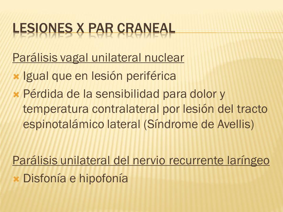 LESIONES X PAR CRANEAL Parálisis vagal unilateral nuclear