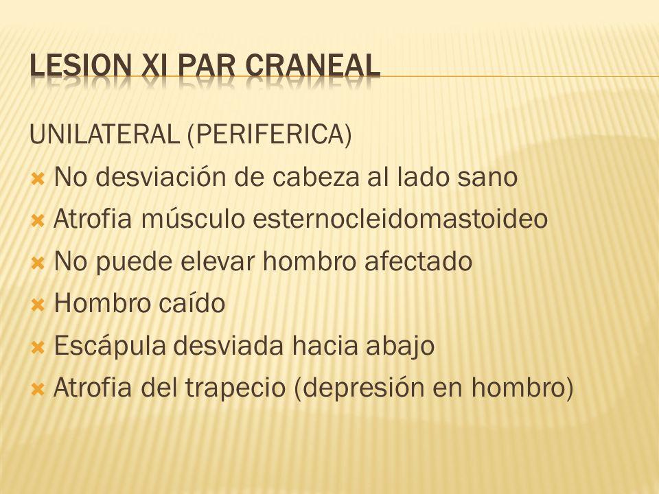 LESION XI PAR CRANEAL UNILATERAL (PERIFERICA)