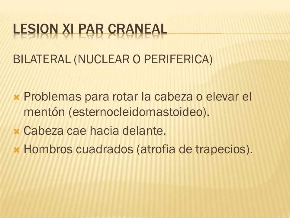 LESION XI PAR CRANEAL BILATERAL (NUCLEAR O PERIFERICA)