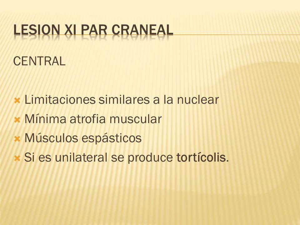 LESION XI PAR CRANEAL CENTRAL Limitaciones similares a la nuclear