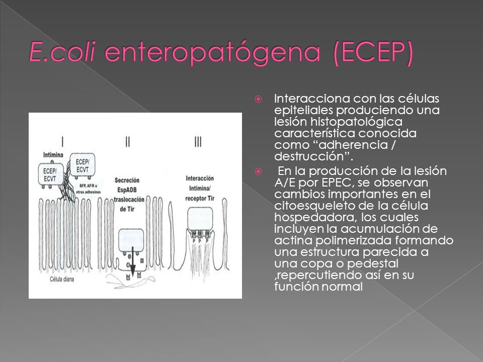 E.coli enteropatógena (ECEP)