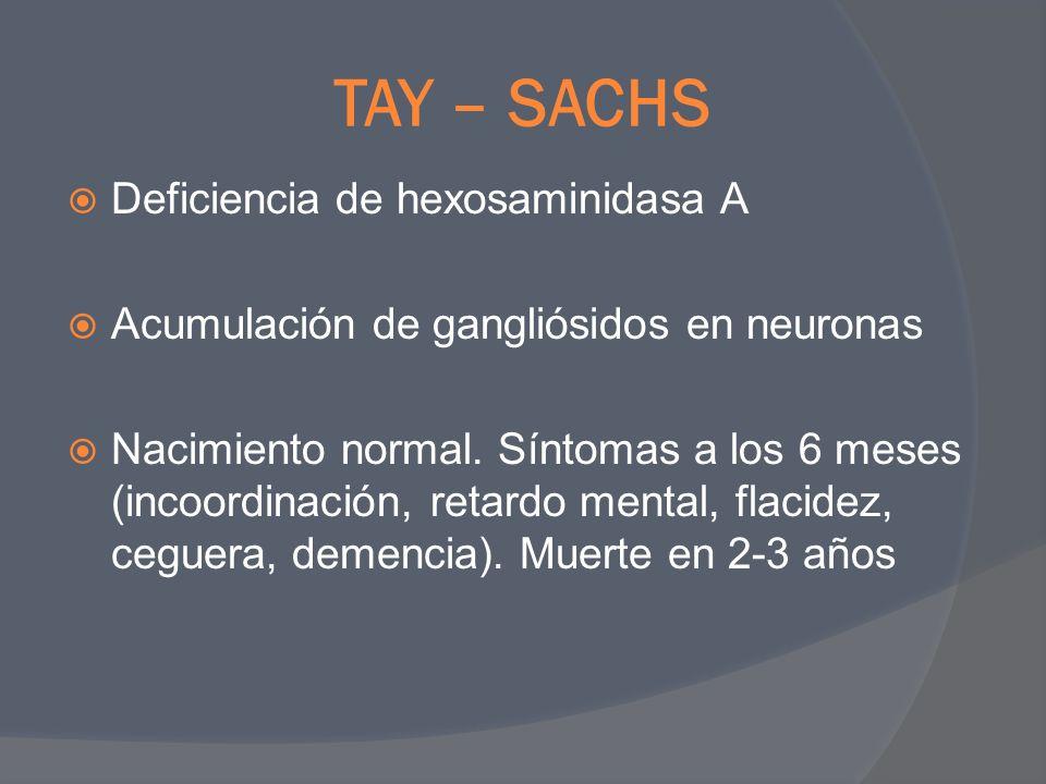 TAY – SACHS Deficiencia de hexosaminidasa A