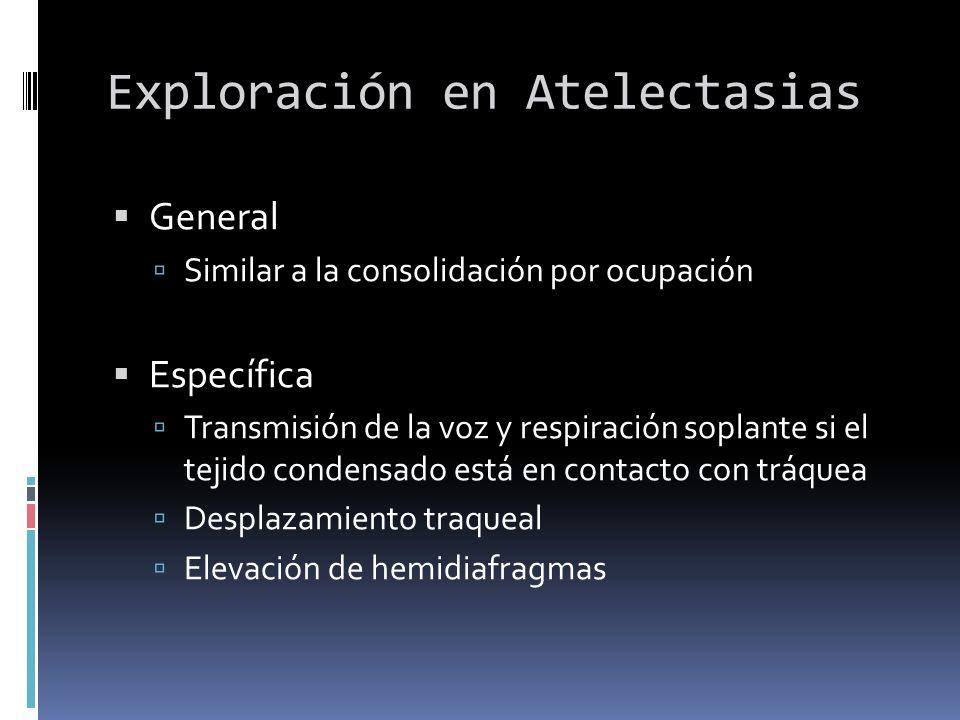 Exploración en Atelectasias