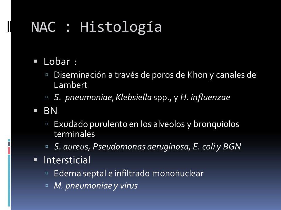 NAC : Histología Lobar : BN Intersticial