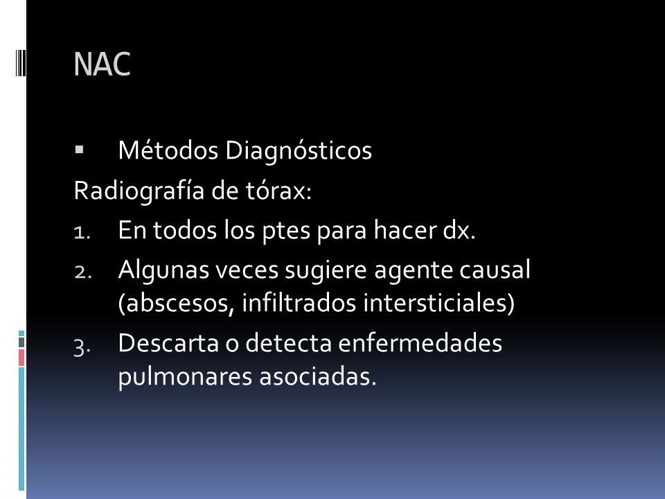 NAC Métodos Diagnósticos Radiografía de tórax: