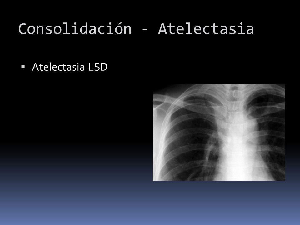 Consolidación - Atelectasia