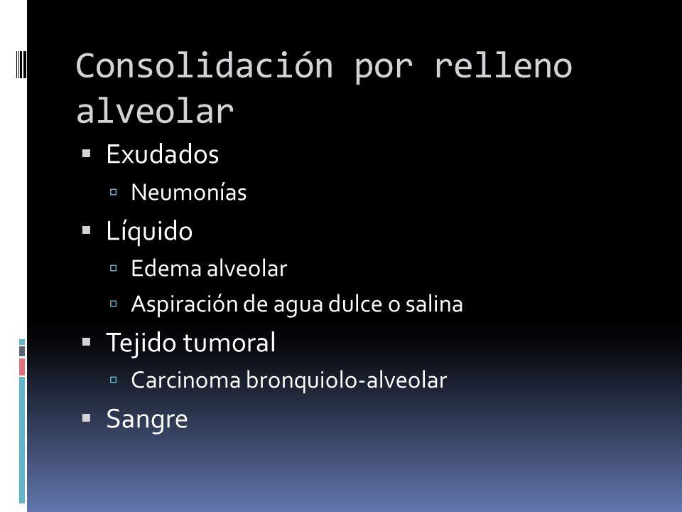 Consolidación por relleno alveolar