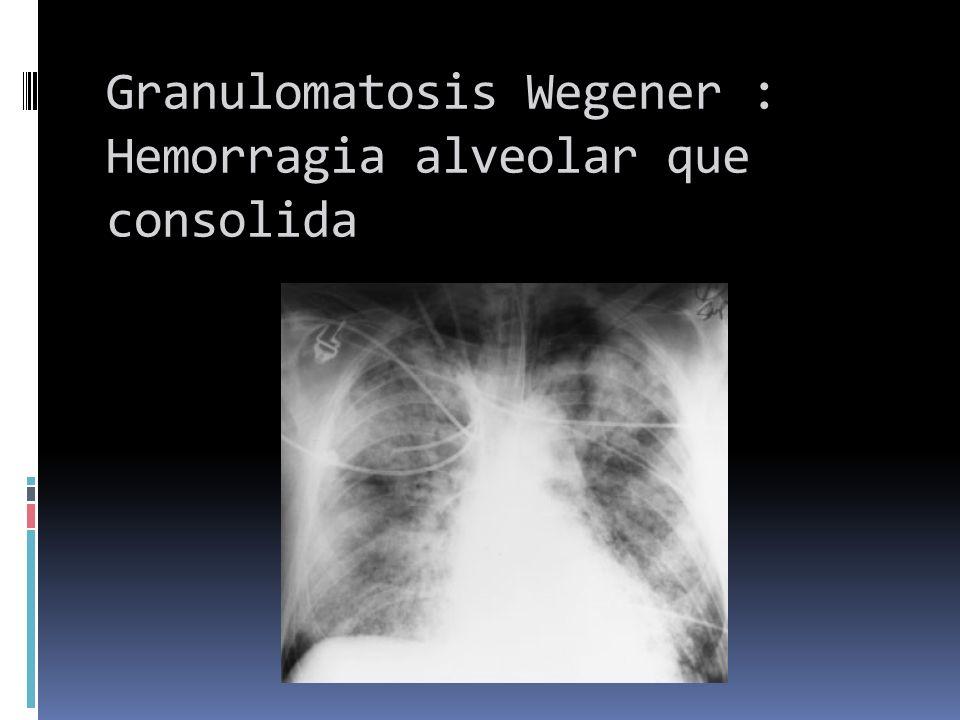 Granulomatosis Wegener : Hemorragia alveolar que consolida