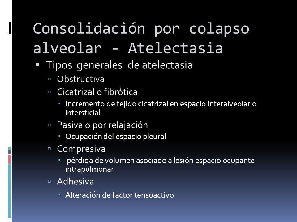 Consolidación por colapso alveolar - Atelectasia