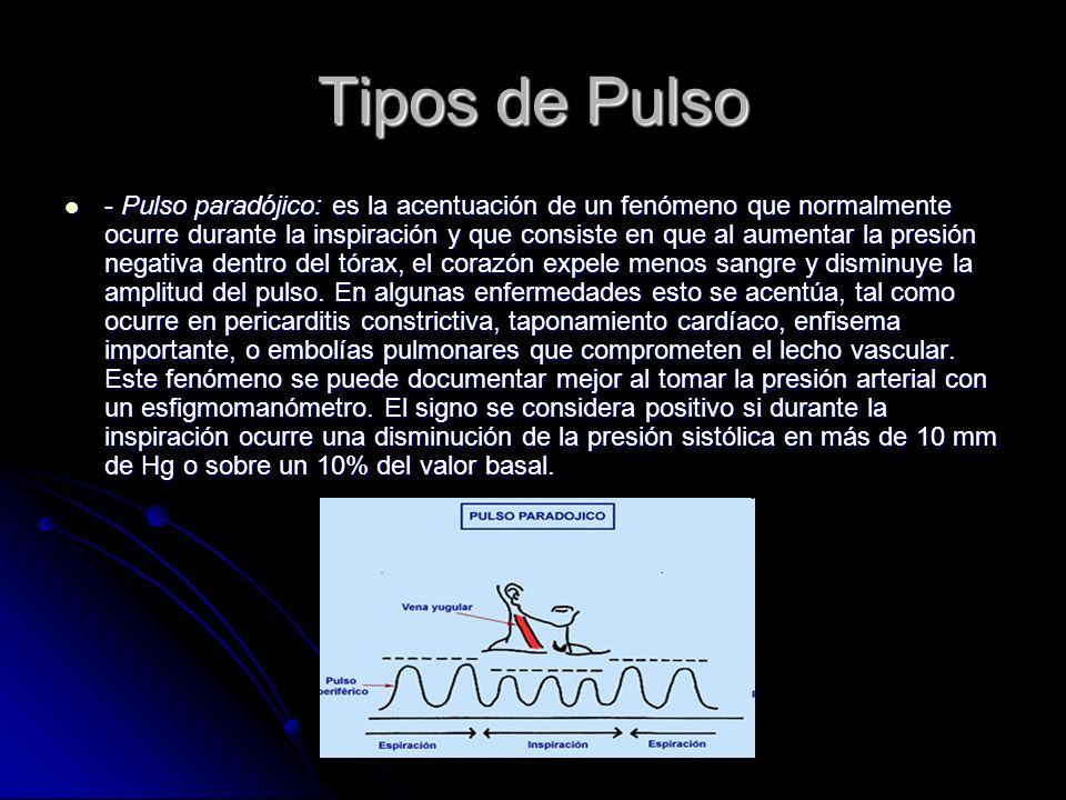 Tipos de Pulso