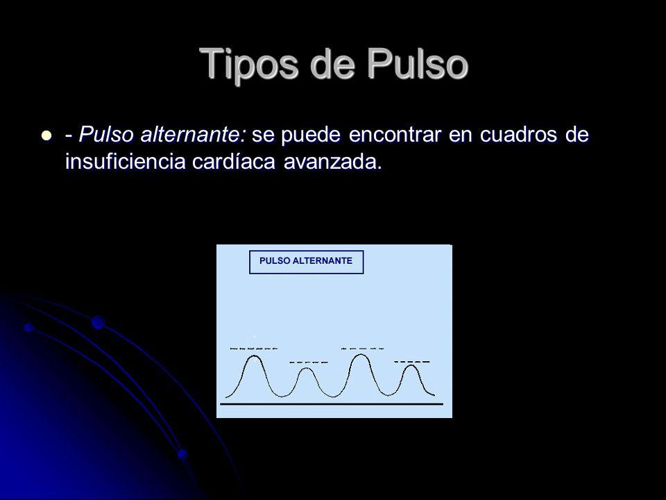 Tipos de Pulso - Pulso alternante: se puede encontrar en cuadros de insuficiencia cardíaca avanzada.