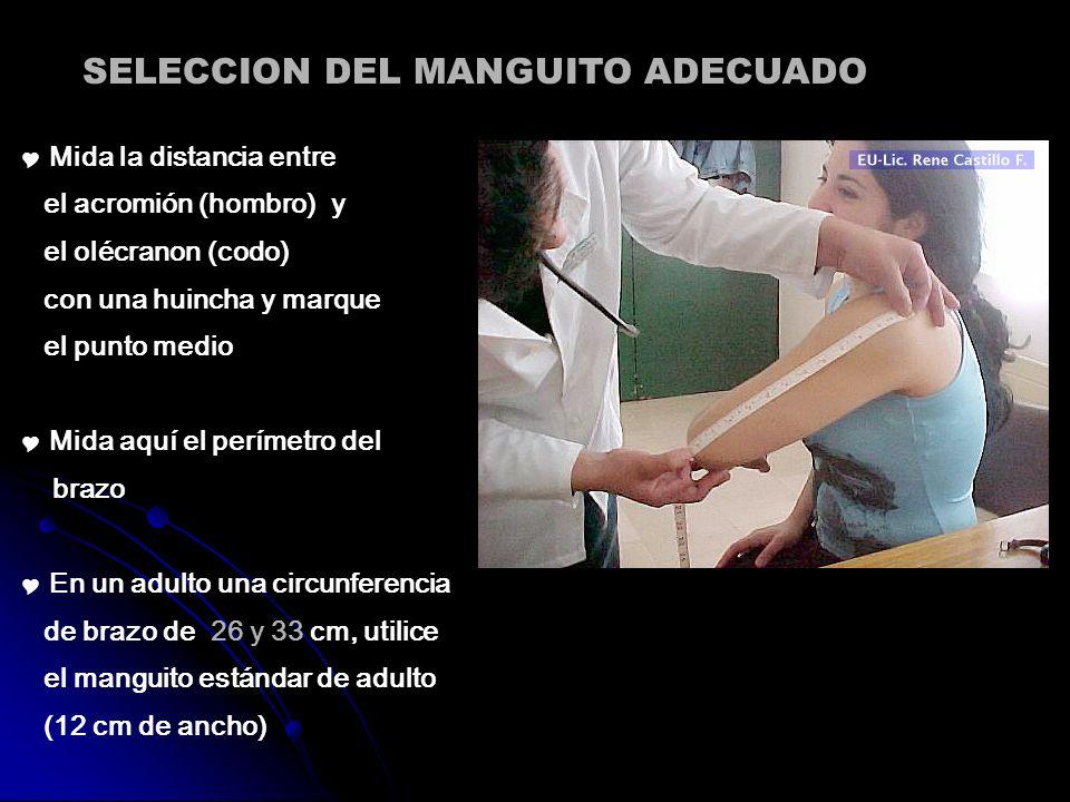 SELECCION DEL MANGUITO ADECUADO