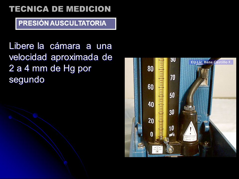 TECNICA DE MEDICIONPRESIÓN AUSCULTATORIA.