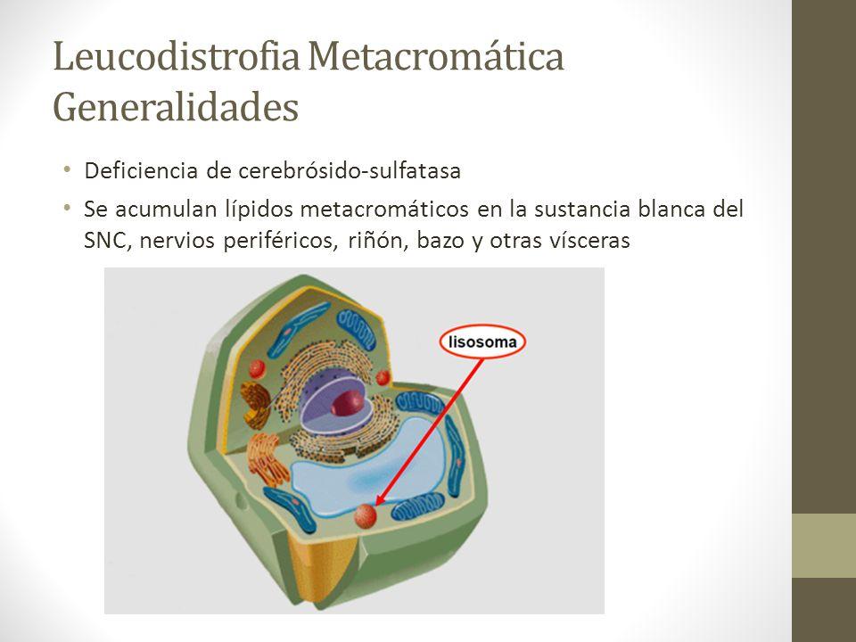 Leucodistrofia Metacromática Generalidades