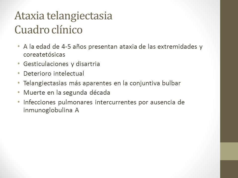 Ataxia telangiectasia Cuadro clínico
