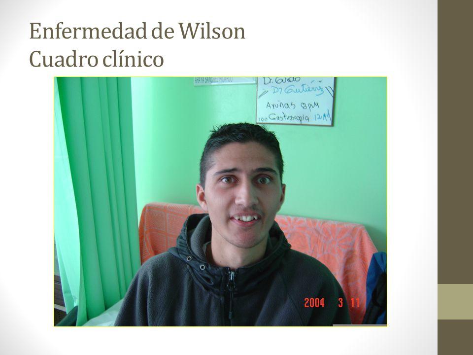 Enfermedad de Wilson Cuadro clínico