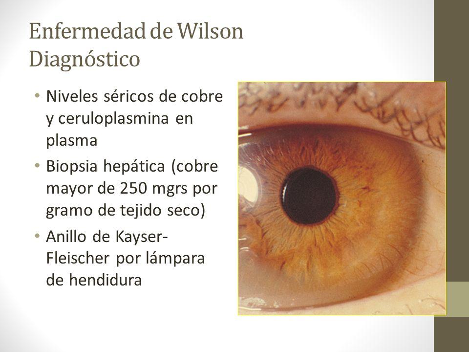 Enfermedad de Wilson Diagnóstico