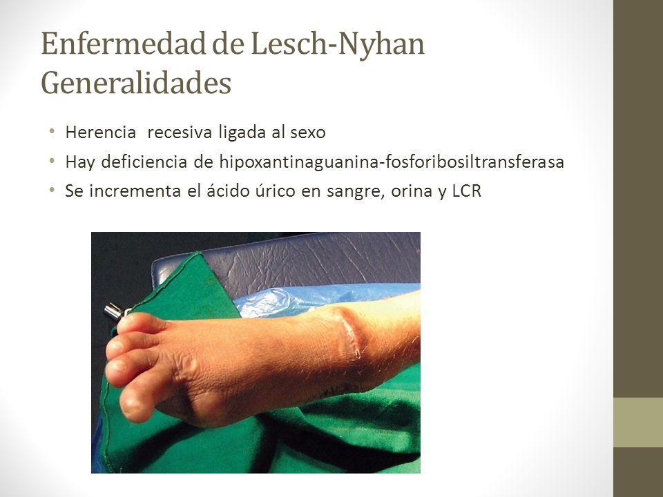 Enfermedad de Lesch-Nyhan Generalidades