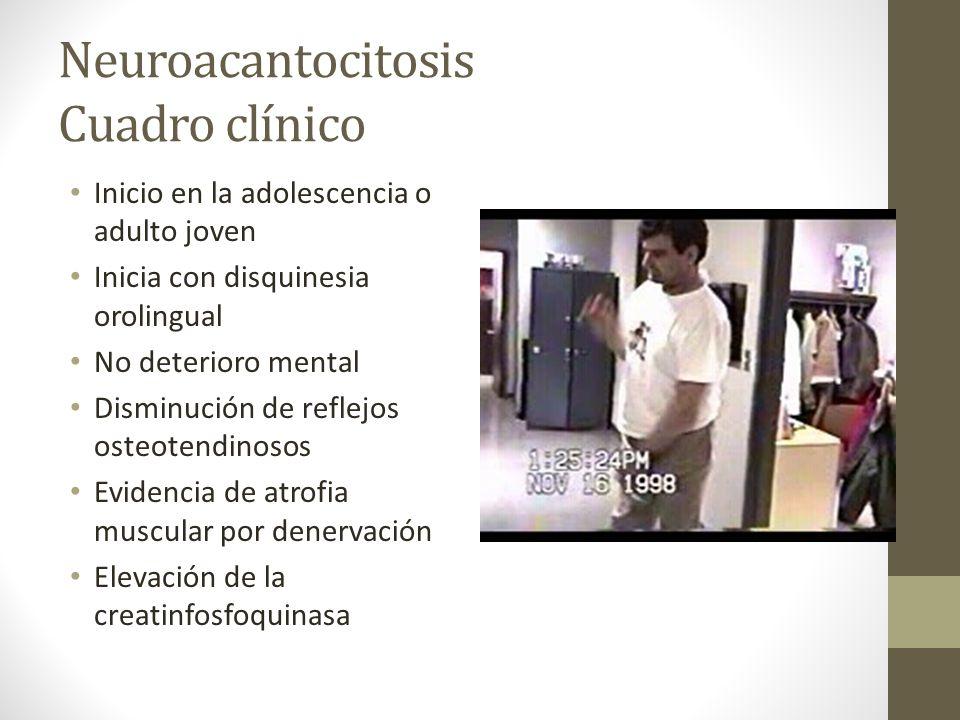 Neuroacantocitosis Cuadro clínico