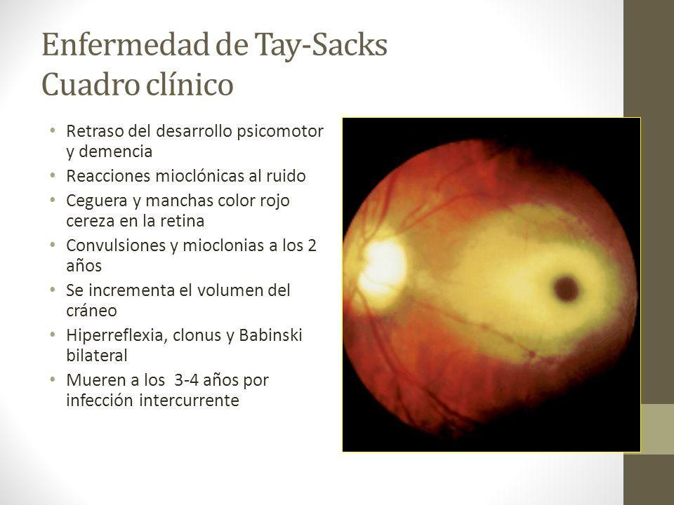 Enfermedad de Tay-Sacks Cuadro clínico