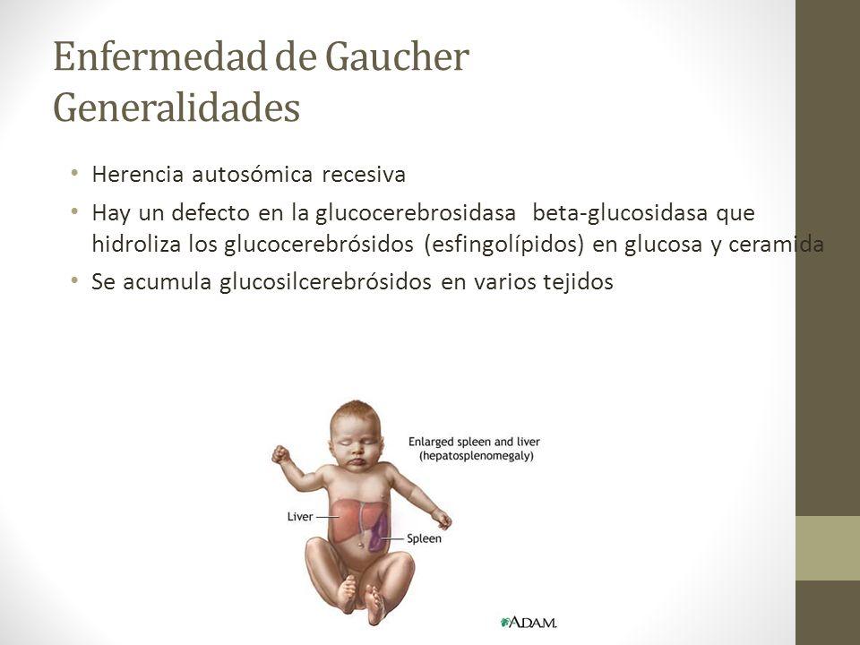 Enfermedad de Gaucher Generalidades