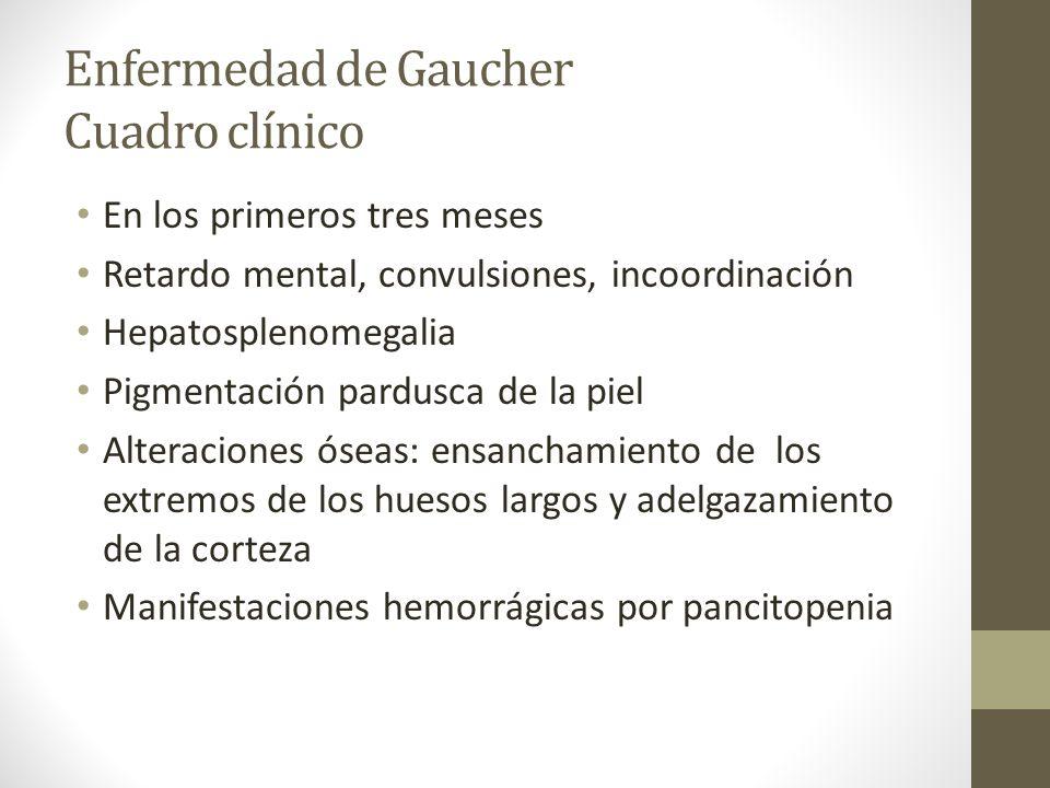Enfermedad de Gaucher Cuadro clínico