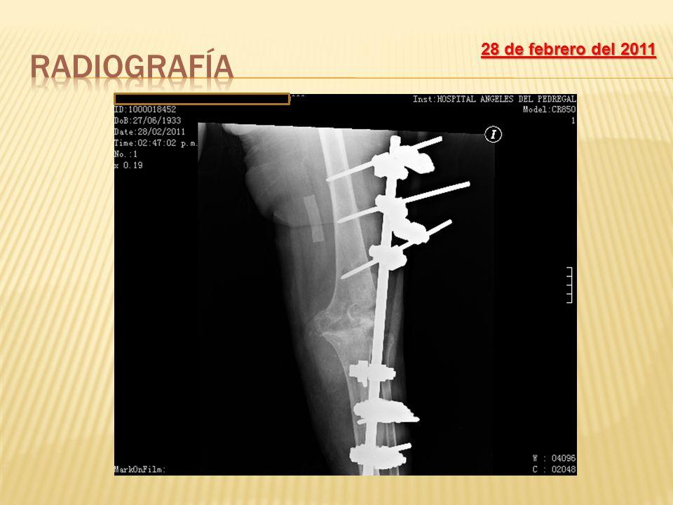 Radiografía 28 de febrero del 2011