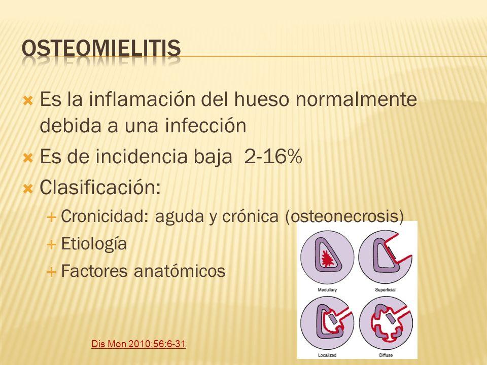 Osteomielitis Es la inflamación del hueso normalmente debida a una infección. Es de incidencia baja 2-16%