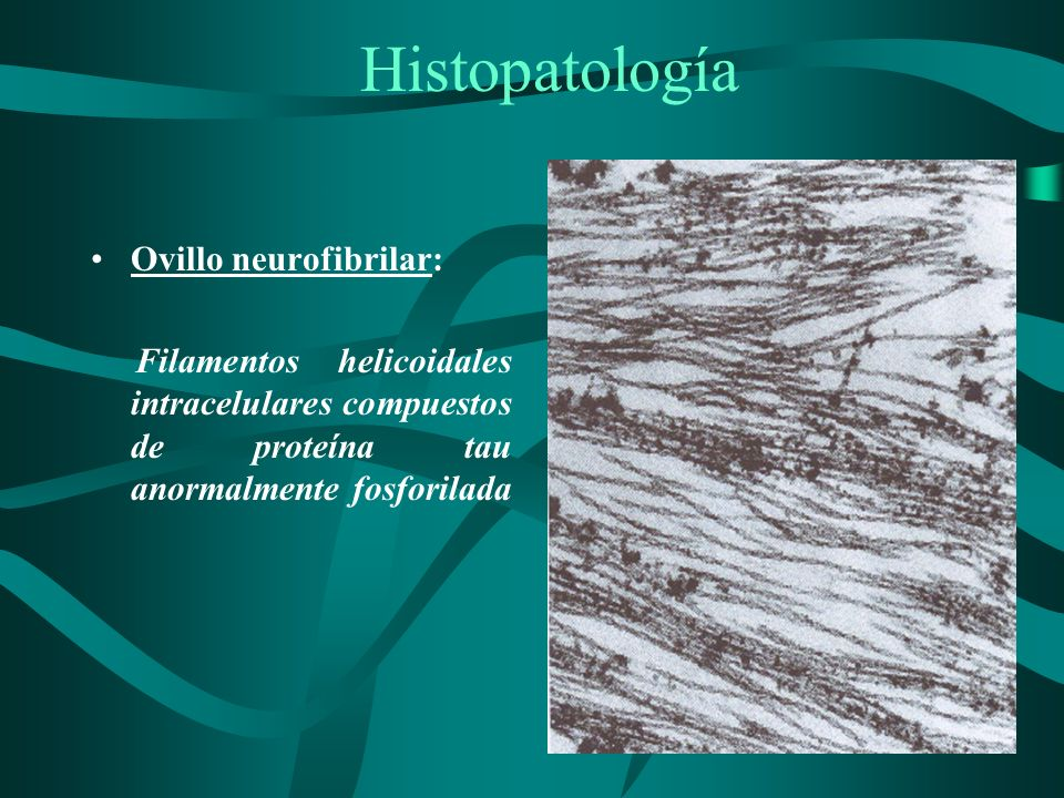 Histopatología Ovillo neurofibrilar: